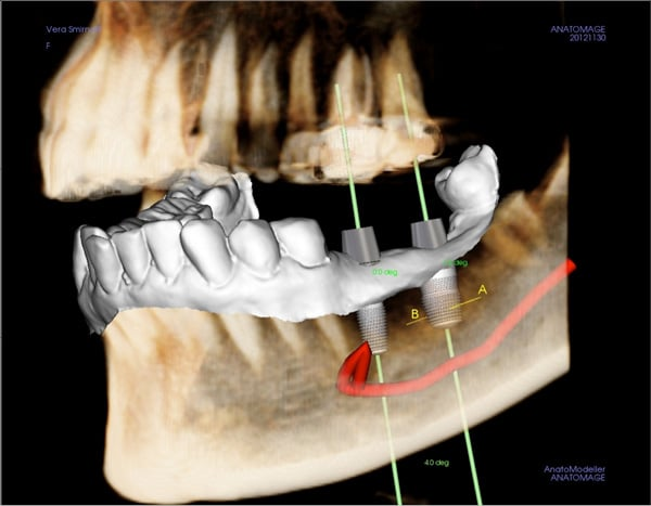 A 3D schematic of dental implants in place in the lower jaw