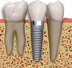 An illustration of a dental implant between two natural teeth