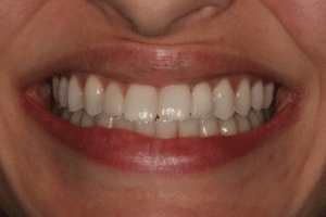 A woman with a full set of natural teeth with a dental implant in place