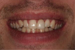 A man with a dental implant in place next to his natural teeth