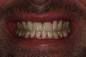 A man with dental implants naturally in place with the rest of his teeth