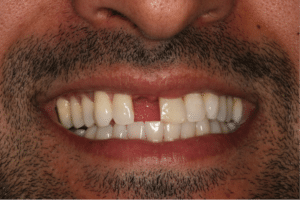 A man with a missing front tooth