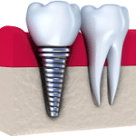 An illustration of a dental implant screwed into the gums next to a natural tooth