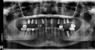 An x-ray showing four screws in place of dental implants in the mouth