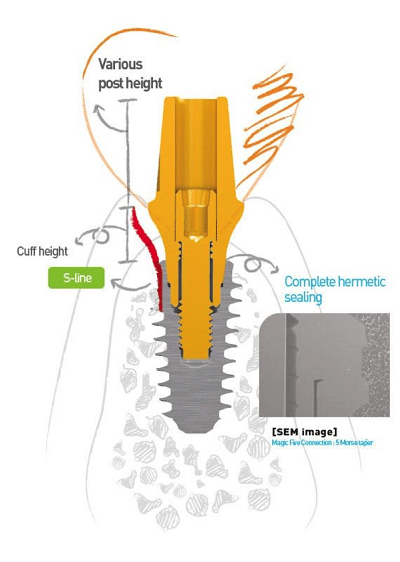 An illustration of how the Anyridge Implant System works including various post height, hermetic sealing, and cuff height