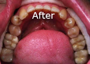 An after-photo of one of Dr. Kim's patients with new tooth colored fillings