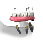 An all-on-four drawing showing four screws going into the bottom jaw of a set of teeth into four abutments