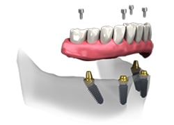 An all-on-four illustration showing four screws going into the bottom jaw of a set of teeth into four abutments