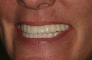 Lori's straight, white, and full set of teeth after having all-on-four dental implants by Dr. Kim at Pacific Smiles