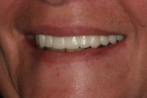 Carol's straight, white teeth after having all-on-four dental implants by Dr. Kim at Pacific Smiles