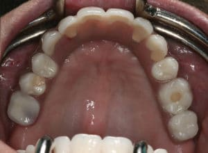 Helena's all-on-four dental implant in place, a full set of beautiful teeth, placed in her upper jaw