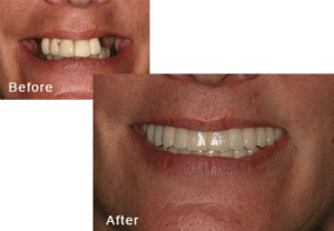 Before-and-after comparison of Lori's teeth after having all-on-four dental implants by Dr. Kim at Pacific Smiles