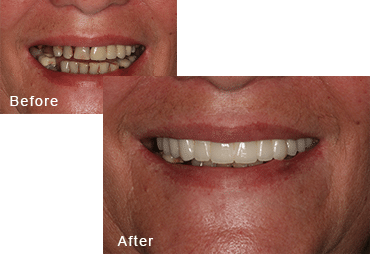 Before-and-after comparison of Carol's teeth after having all-on-four dental implants by Dr. Kim at Pacific Smiles