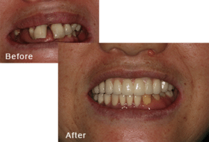 Before-and-after comparison of Chongrae's teeth after having all-on-four dental implants by Dr. Kim at Pacific Smiles