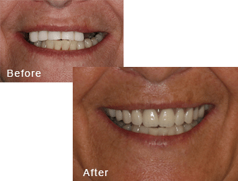 Before-and-after comparison of Helena's teeth after having all-on-four dental implants by Dr. Kim at Pacific Smiles