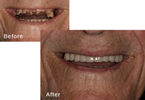 Before-and-after comparison of Ronald's teeth after having all-on-four dental implants by Dr. Kim at Pacific Smiles