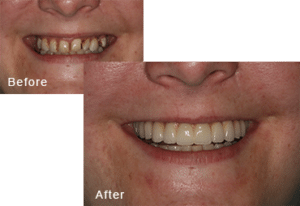 Before-and-after comparison of Sarah's teeth after having all-on-four dental implants by Dr. Kim at Pacific Smiles