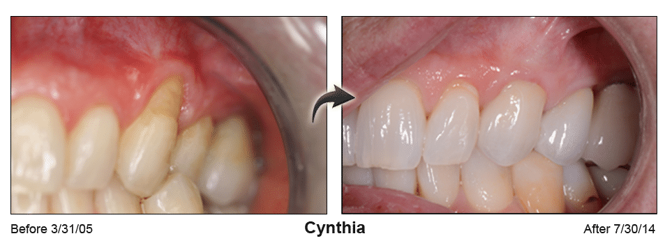 Pinhole Surgery before-and-after comparison of Cynthia's gum recession, performed by Dr. Kim at Pacific Smiles