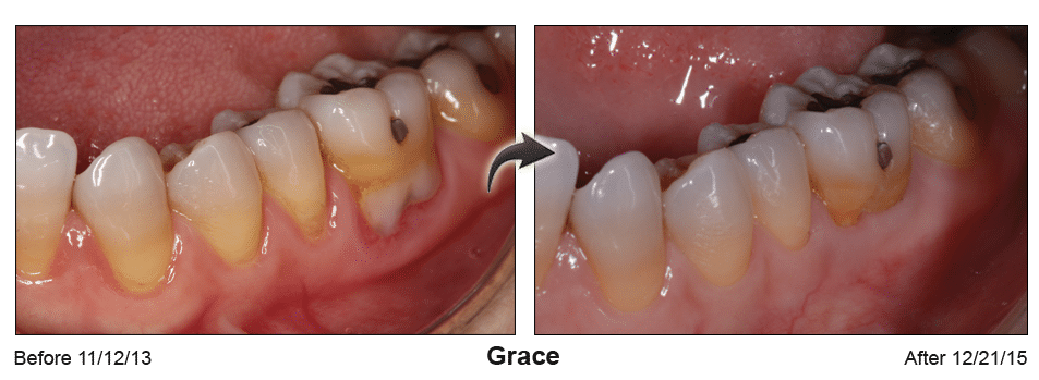 Pinhole Surgery before-and-after comparison of Grace's gum recession, performed by Dr. Kim at Pacific Smiles