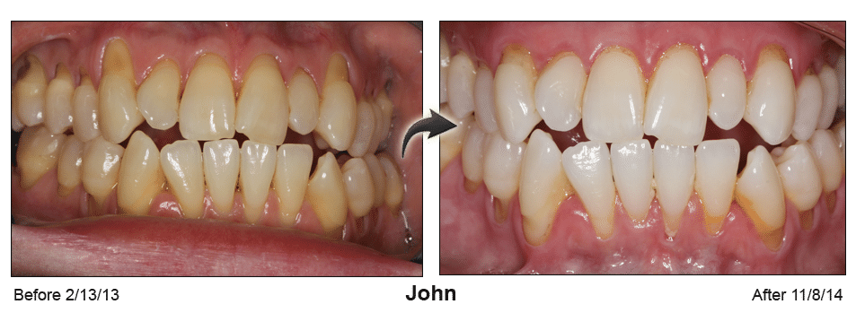Pinhole Surgery before-and-after comparison of John's gum recession, performed by Dr. Kim at Pacific Smiles