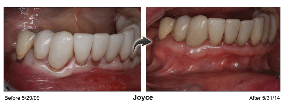 Pinhole Surgery before-and-after comparison of Joyce's gum recession, performed by Dr. Kim at Pacific Smiles