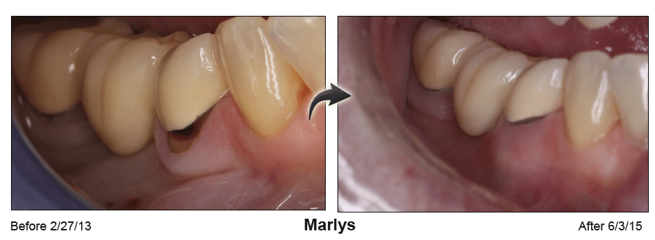 Pinhole Surgery before-and-after comparison of Marlys' gum recession, performed by Dr. Kim at Pacific Smiles