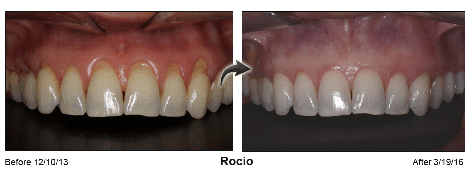 Pinhole Surgery before-and-after comparison of Rocio's gum recession, performed by Dr. Kim at Pacific Smiles