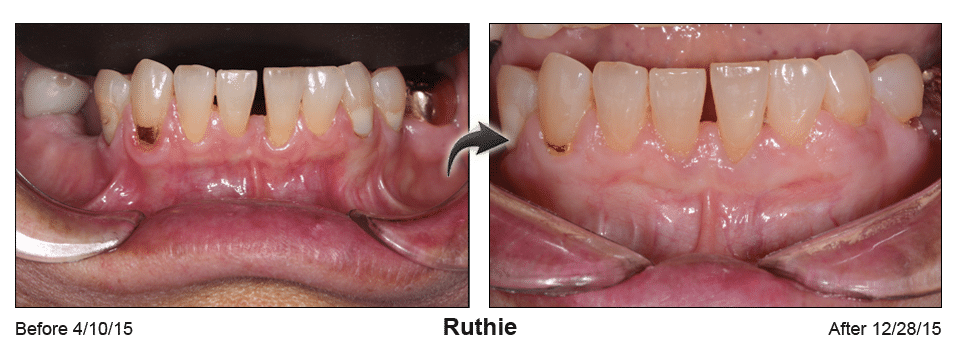Pinhole Surgery before-and-after comparison of Ruthie's gum recession, performed by Dr. Kim at Pacific Smiles