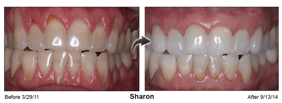 Pinhole Surgery before-and-after comparison of Sharon's gum recession, performed by Dr. Kim at Pacific Smiles