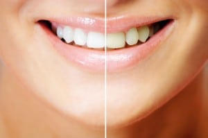 A smiling woman's mouth comparing her teeth before and after teeth whitening
