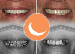 Pacific Smiles Before and After cases for All On Four Dental Implants