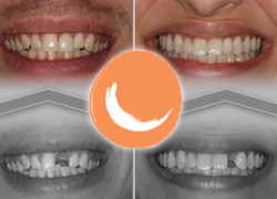 Pacific Smiles Before and After cases for Dental Implants