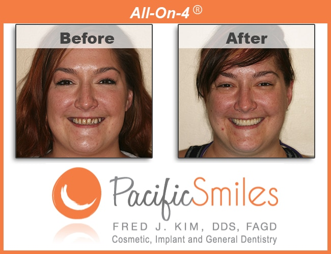 A Before and After All On Four case by Dr. Kim, DDS, FAGD at Pacific Smiles