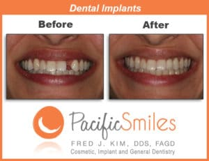 A Before and After Dental Implant case by Dr. Kim at Pacific Smiles