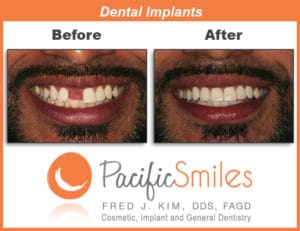 A Before and After Dental Implant case by Dr. Kim, DDS, FAGD at Pacific Smiles