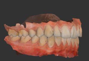 A Digital Impression taken of teeth