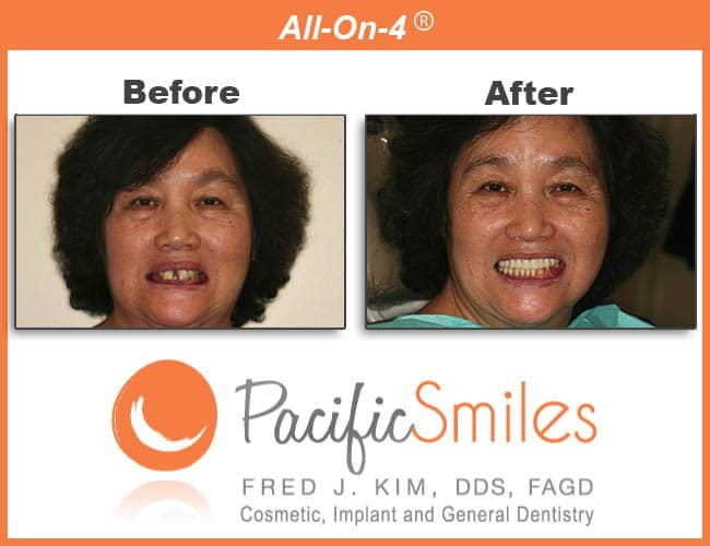 Before and After All On Four Case by Fred J. Kim, DDS, FAGD at Pacific Smiles a Cosmetic, Implant, and General Dentistry