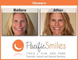 Veneers Before and After Comparison by Fred J. Kim, DDS, FAGD at Pacific Smiles - Cosmetic, Implant and General Dentistry