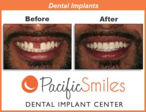 A Before and After Dental Implant case by Dr. Kim, DDS, FAAID at Pacific Smiles
