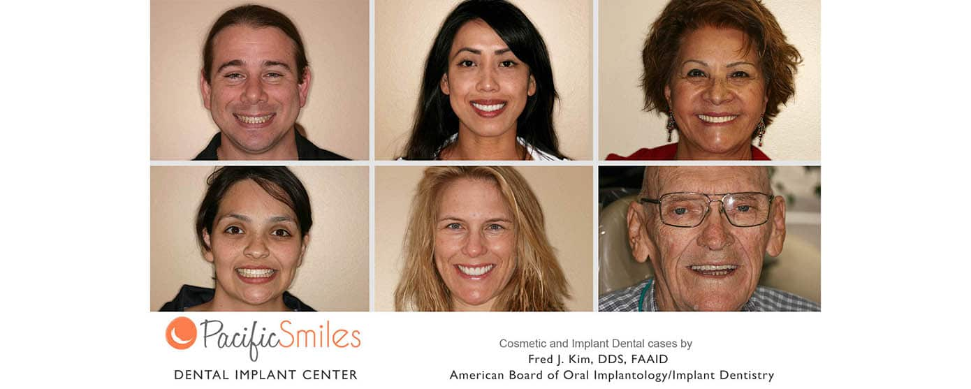 Two men and four women smiling with straight beautiful teeth after having cosmetic and implant dental work at Pacific Smiles under Dr. Kim